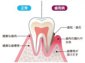 歯科治療について #2  歯周治療